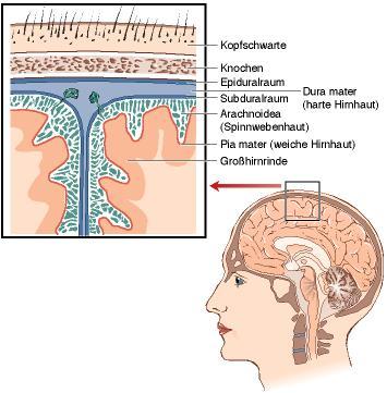 Behandlungsarten beim Hydrocephalus